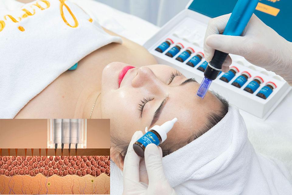 Tế bao gốc lăn kim trị sẹo rỗ, tái tạo trẻ hoá da
