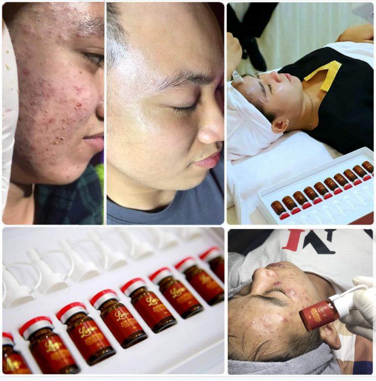 Serum trị mụn cho spa