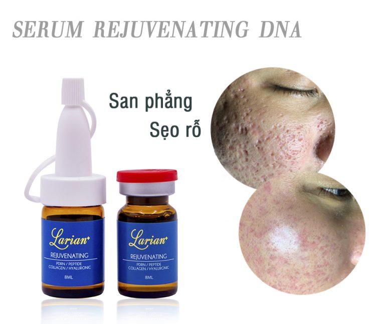 Serum trị sẹo rỗ